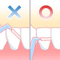歯間ブラシ