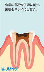 虫歯の部分を丁寧に削り、歯根もキレイにします。